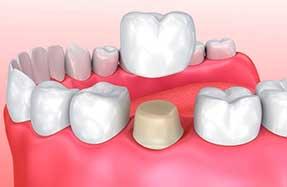 Dental Services | Crowns & Bridges