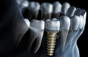 Dental Services | Dental Implants