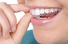 Dental Services | Invisalign